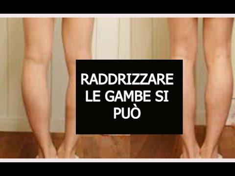 Come Raddrizzare le Gambe in maniera naturale