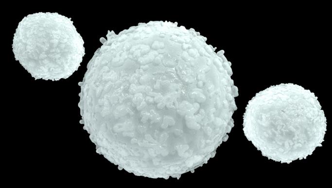 globuli bianchi alti